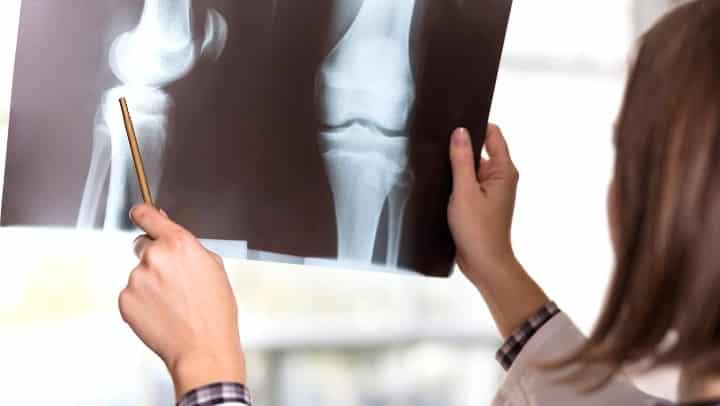 5 remédios naturais para a artrose
