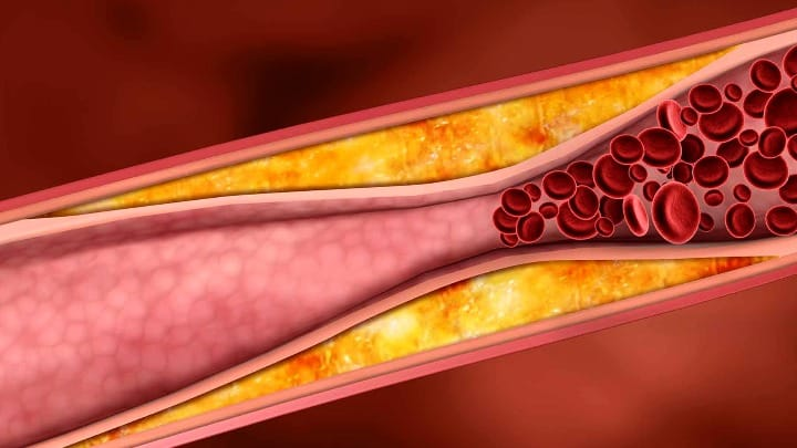 6 remédios naturais para a tensão arterial alta