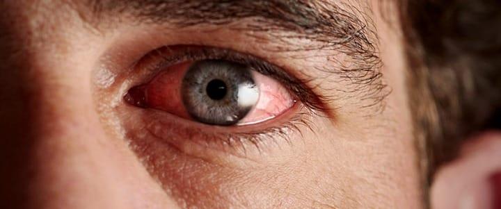7 remédios naturais para a conjuntivite