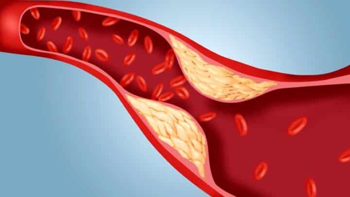7 remédios naturais para reduzir o colesterol