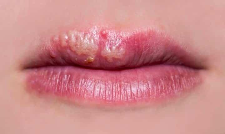 8 remédios naturais para o herpes