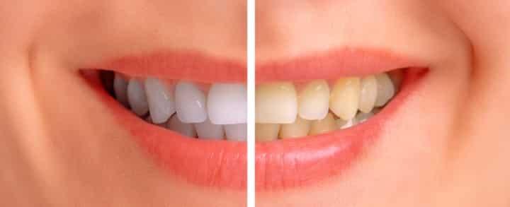 Remédios caseiros para clarear os dentes