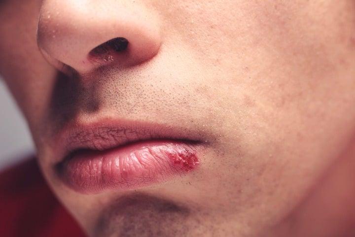Remédios caseiros para o herpes
