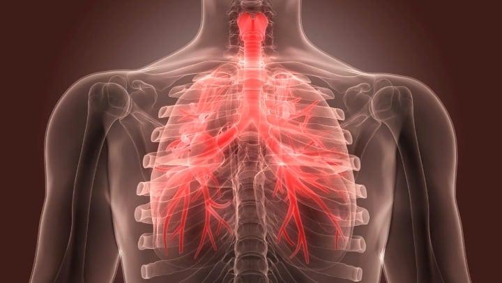 Home remédios para bronquite