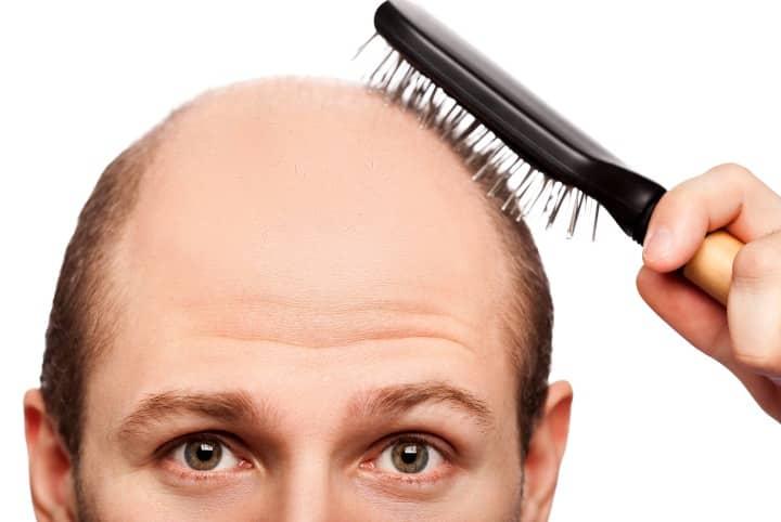 Remédios caseiros para a queda do cabelo