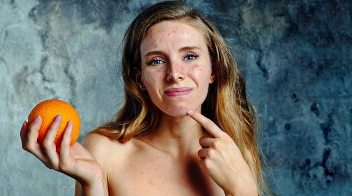 Remédios caseiros para as manchas na pele